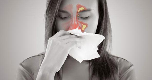 5 Obat Herbal Sinusitis Yang Dapat Ditemukan Di Rumah
