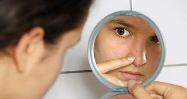 3 Cara Untuk Menghilangkan Bopeng Di Wajah