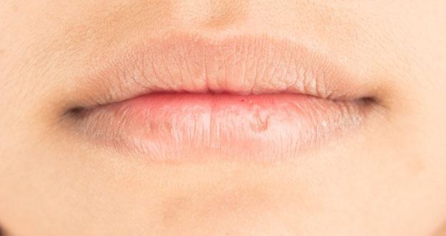 4 Cara Mengatasi Bibir Pecah-Pecah