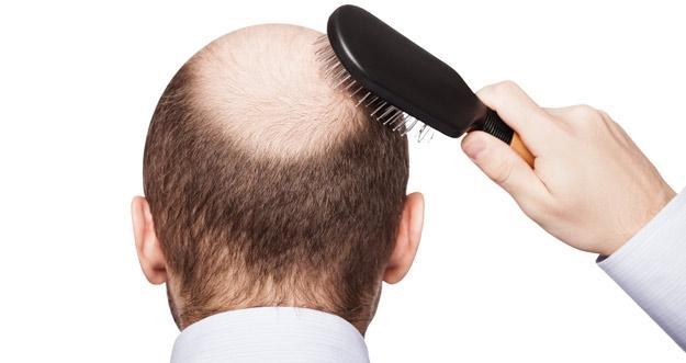 Cara Alami Melawan Rambut Rontok