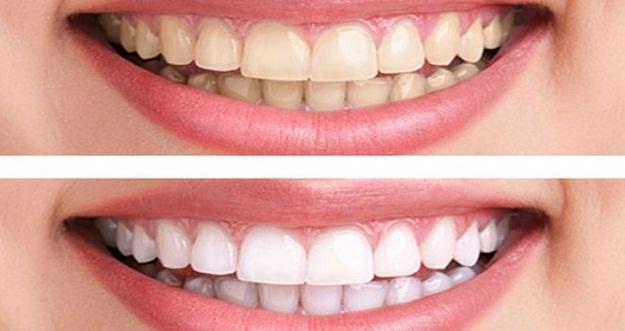 Putihkan Gigi Hanya Dalam 5 Menit