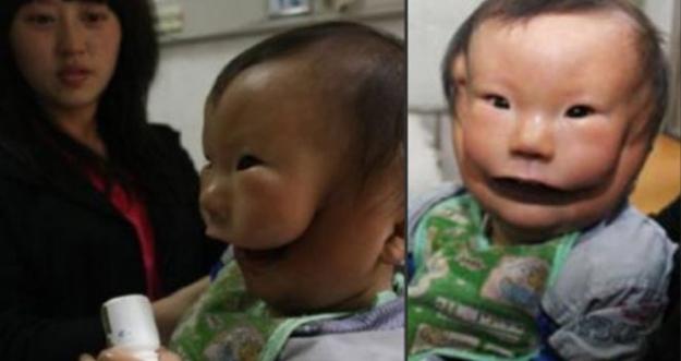 10 Orang Di Dunia Yang Terlahir Dengan Bagian Tubuh Ekstra