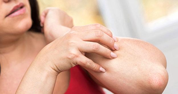 8 Cara Menghilangkan Bekas Luka Gatal