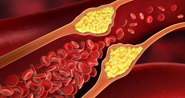 Kolesterol Tinggi Di Usia Muda Bisa Memperpendek Usia