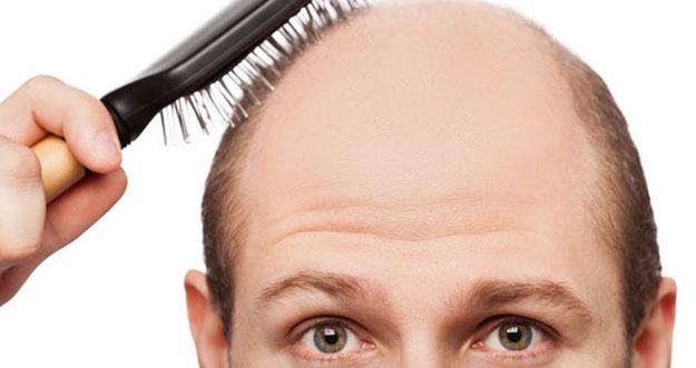 Penyebab Rambut Rontok Yang Tak Kamu Ketahui