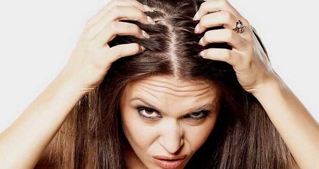 Rambut Mudah Berminyak Meski Sudah Keramas? Berikut Penyebabnya