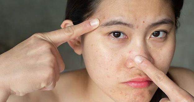 3 Cara Menghilangkan Bopeng Bekas Jerawat Pada Wajah