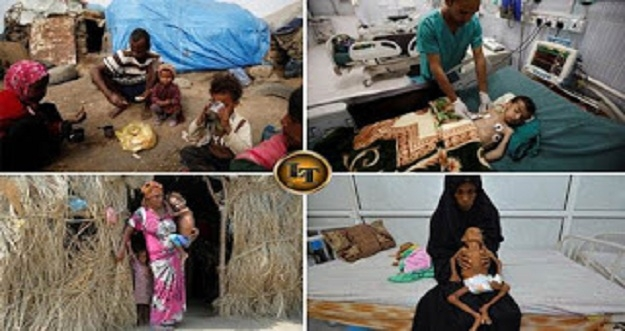 10 Foto Menyedihkan Kondisi Anak-Anak Kelaparan Akibat Perang di Yaman