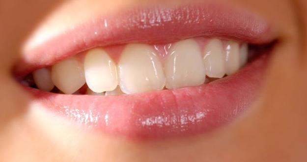7 Hal Yang Mempengaruhi Warna Gigi