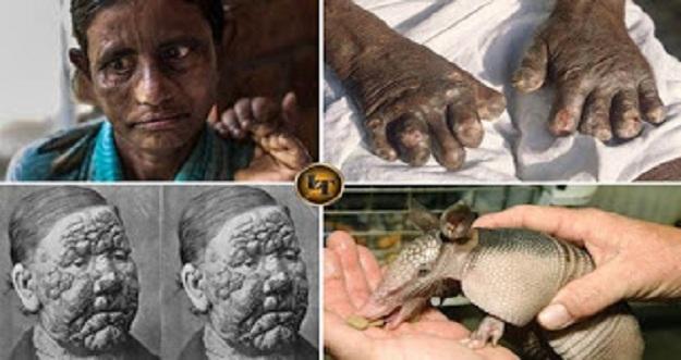Leprosy, Penyakit Mengerikan Yang Mulai Mengancam Indonesia