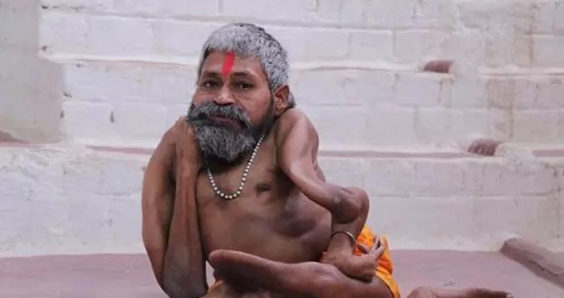 Pendeta India Bertubuh Bengkok Karena Penyakit Misterius