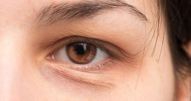 5 Cara Menghilangkan Lingkaran Hitam Di Mata
