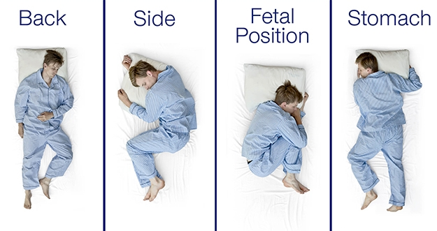 4 Masalah Akibat Tidur Salah Posisi