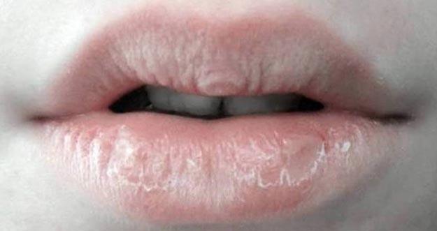 Membasahi Bibir Kering Dengan Air Liur, Apa Dampaknya?