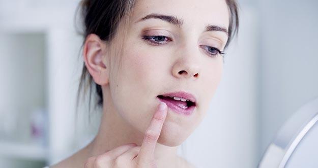 Bahaya Kebiasaan Mengelupas Bibir