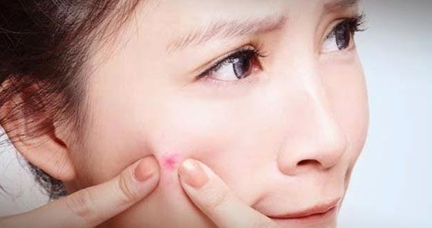 7 Penyebab Munculnya Jerawat Di Usia Muda