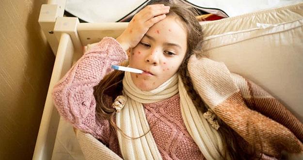 Hal Yang Harus Dilakukan Agar Penyakit Cacar Tidak Menular
